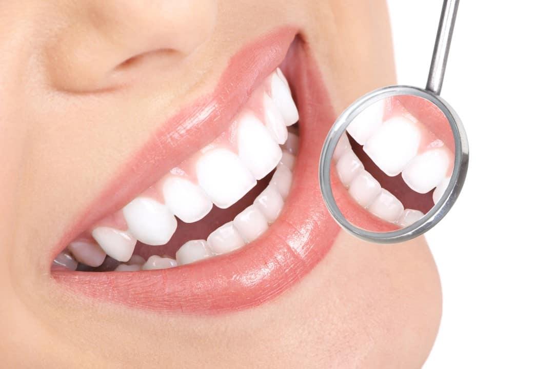 white-teeth-1