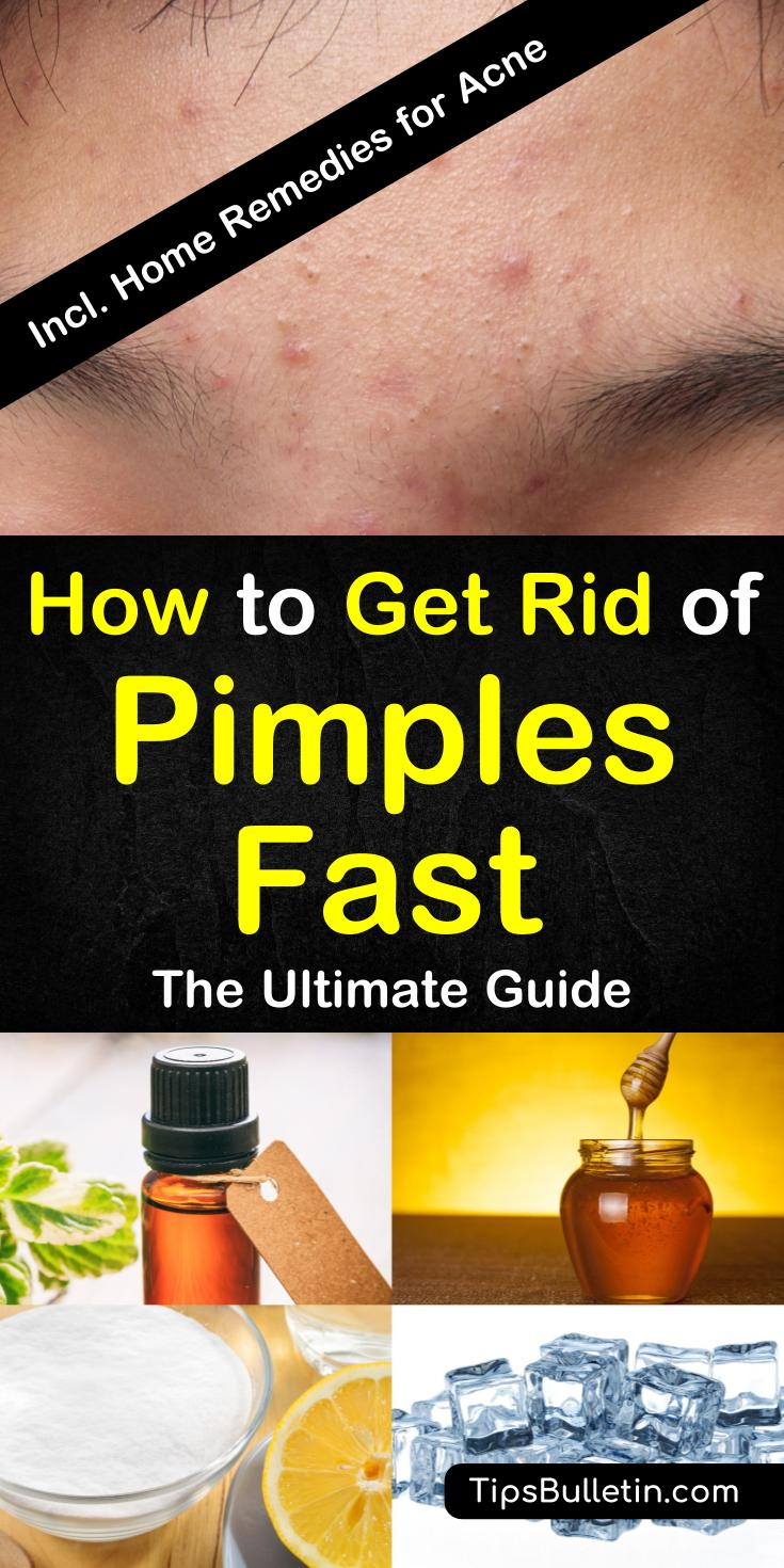how to get rid of bad pimples overnight