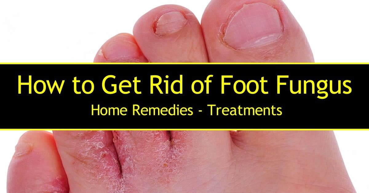 Remove toenail fungus with tea tree oil