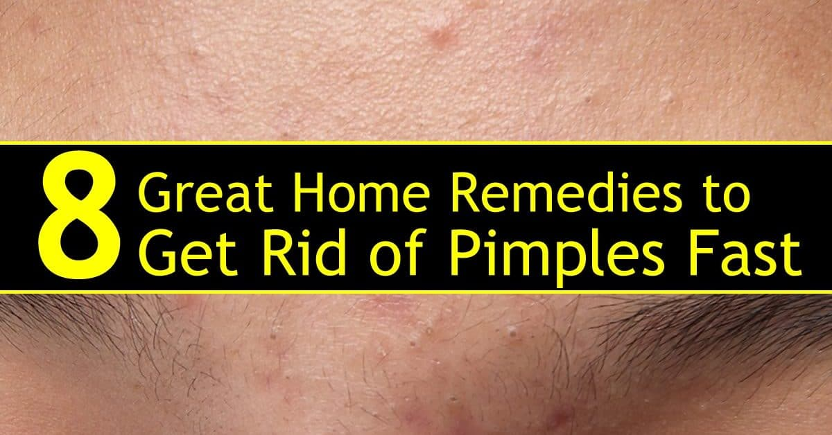 How To Get Rid of Pimples Fast - [ 8 Great Home Remedies ]