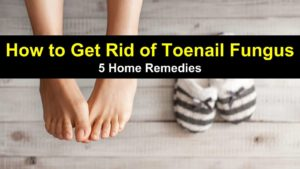 How To Get Rid of Toenail Fungus – 5 Home Remedies
