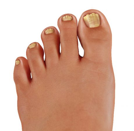 How To Get Rid of Toenail Fungus - 5 Home Remedies