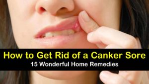 How to Get Rid of a Canker Sore – 15 Wonderful Home Remedies