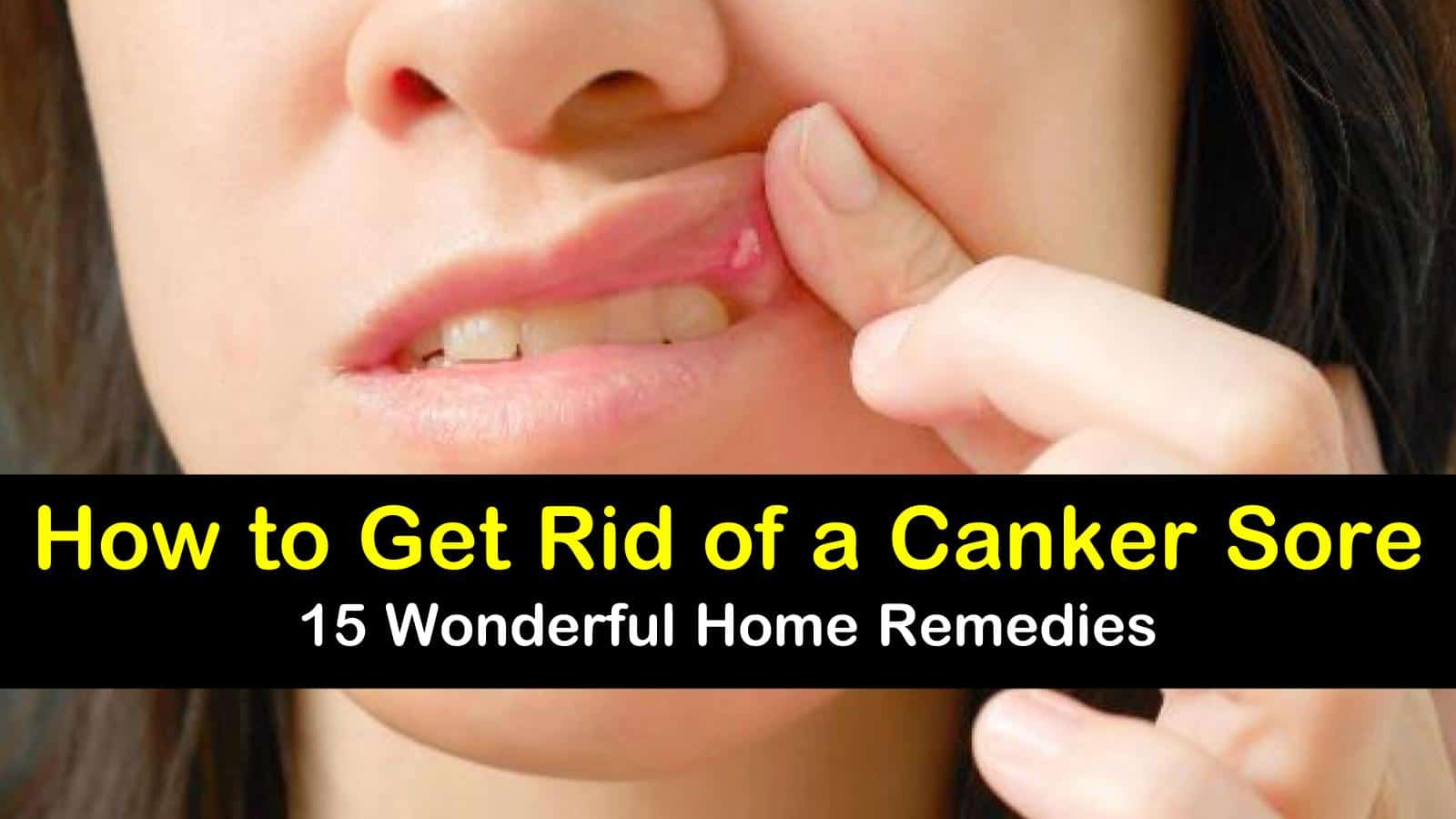 Want to know how to get rid of a canker sore? Check out these 15 home remedies.