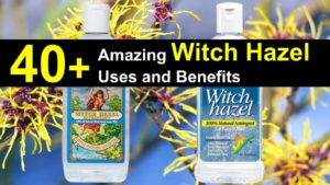 40 Amazing Witch Hazel Uses and Benefits