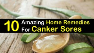 10 Amazing Home Remedies For Canker Sores titleimg1