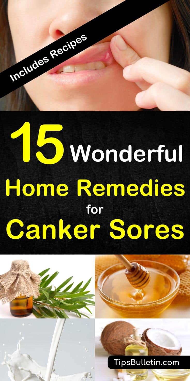 How to Get Rid of a Canker Sore - 15 Wonderful Home Remedies