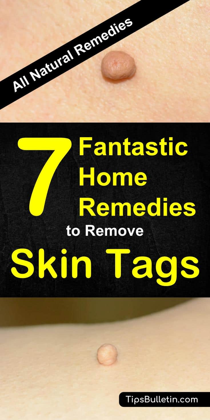 7 Fantastic Home Remedies To Remove Skin Tags - including skin tags removal at home quickly and naturally. Using essential oils, apple cider vinegar, oregano or tea tree oil or various other natural products. Perfect to get rid of skin tags on face, around eyes or under arms.#skintag #removeskintag #health #skin