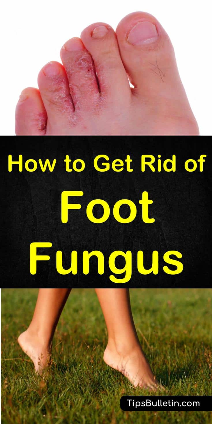 How to Get Rid of Foot Fungus - with pictures of athletes foot and tips on how to use home remedies to get rid of foot fungus fast.#footfungus #athletesfoot