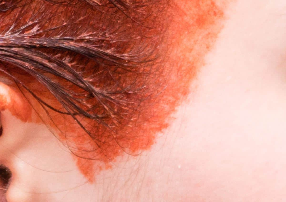 img of hair dye on skin