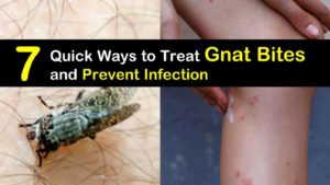 7 Quick Ways to Treat Gnat Bites and Prevent Infection titileimg1