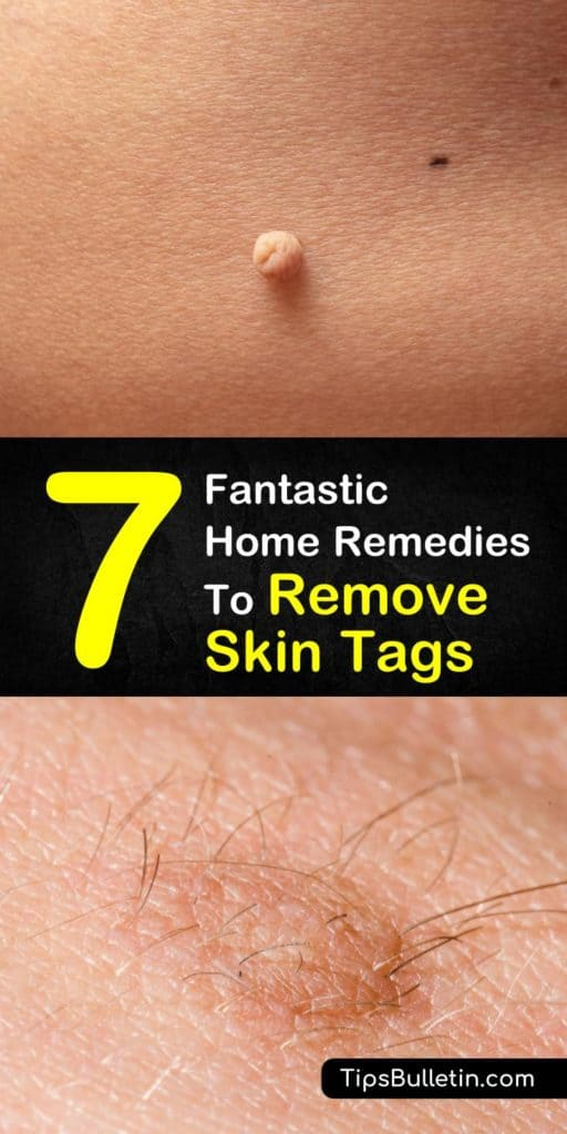 7 Fantastic Home Remedies To Remove Skin Tags - including skin tags removal at home quickly and naturally. Using essential oils, apple cider vinegar, oregano or tea tree oil or various other natural products. Perfect to get rid of skin tags on face, around eyes or under arms. #skintag #removeskintag