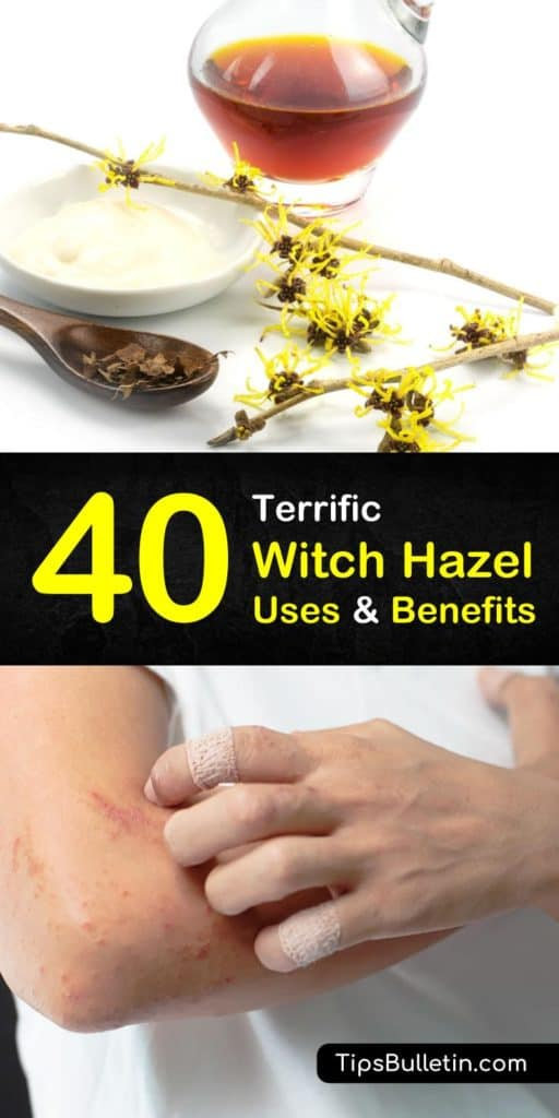 40 Amazing Witch Hazel Uses and Benefits. With detailed tips on using witch hazel for acne, face, beauty, as a toner for skin, in combination with essential oils and also for dogs and plants. Includes eleven witch hazel recipes and remedies tips. #witchhazel #usewitchhazel