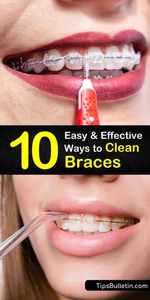 Discover amazing ways to strengthen your oral health in between orthodontist visits and get rid of food particles in braces. The use of fluoride toothpaste, mouthwash, and interdental bristles are some tools you can add to your orthodontic routine. #clean #howto #braces