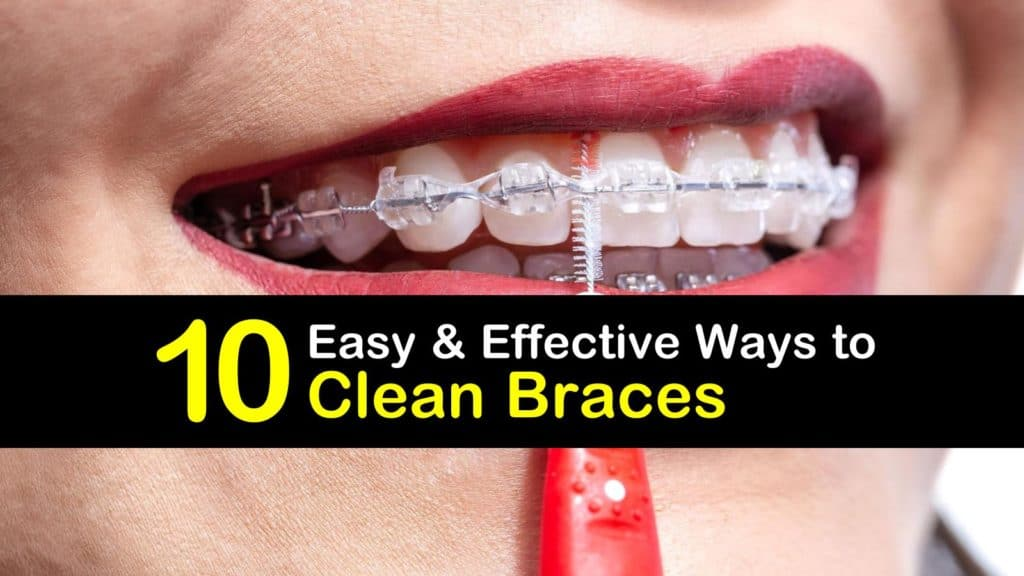 How to Clean Braces titleimg1