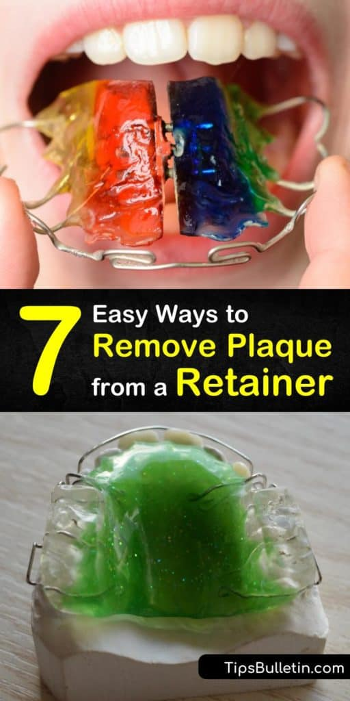 Discover how to clean retainers and aligners to remove plaque after a trip to the orthodontist. Remove plaque to prevent tartar buildup using white vinegar, baking soda, and hydrogen peroxide and avoid using denture cleaners. #remove #retainer #plaque #howto