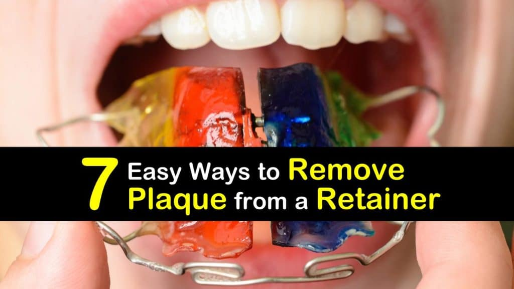 How to Remove Plaque from a Retainer titleimg1